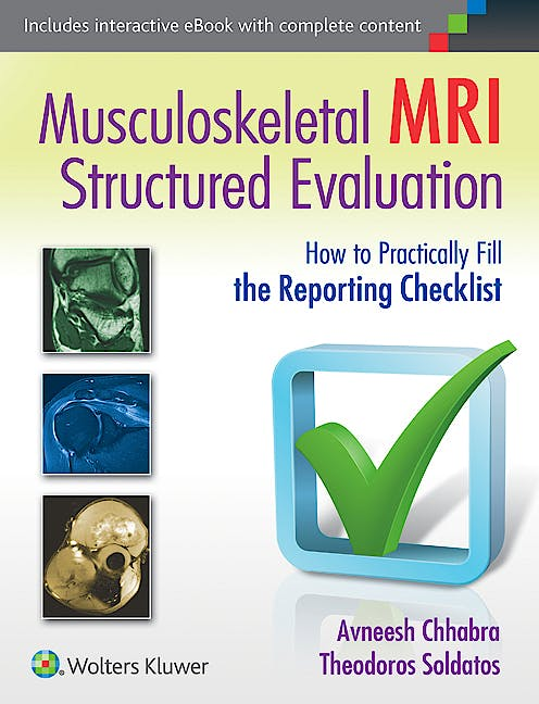 Portada del libro 9781451185935 Musculoskeletal Mri Structured Evaluation