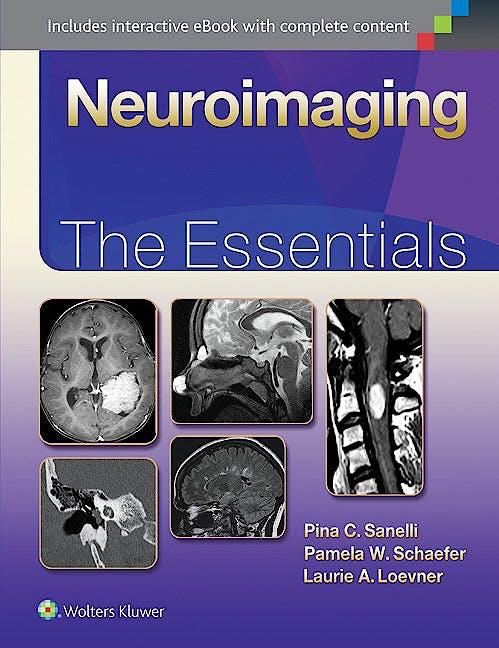 Portada del libro 9781451191356 Neuroimaging. the Essentials