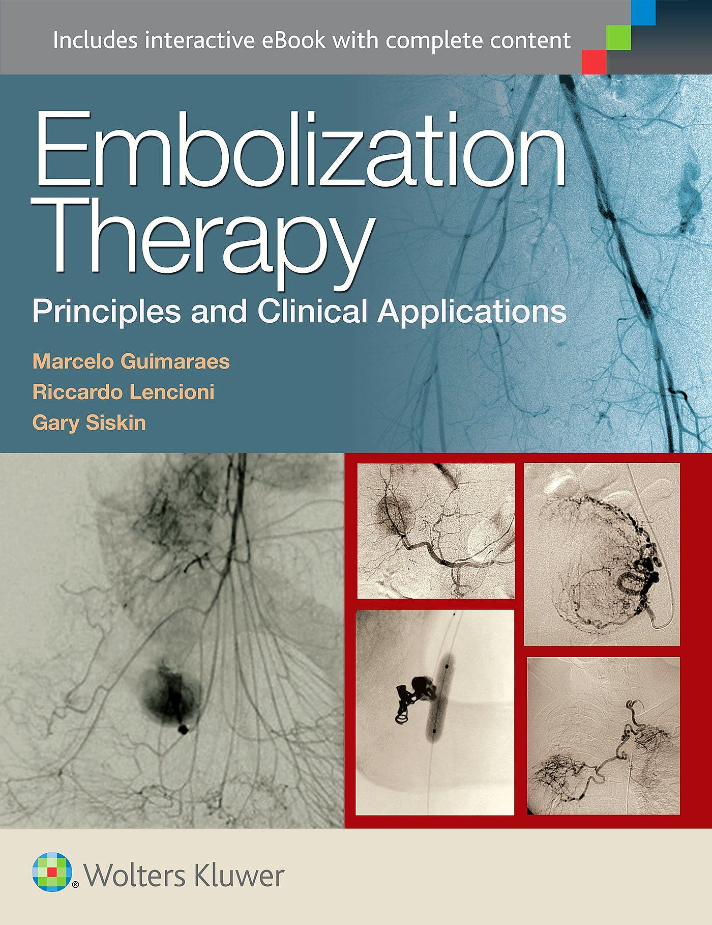 Portada del libro 9781451191448 Embolization Therapy. Principles and Clinical Applications