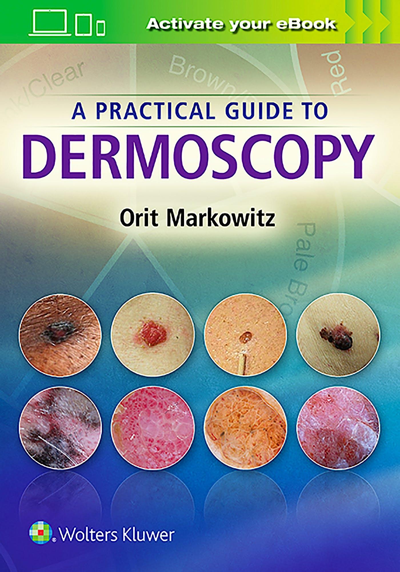 Portada del libro 9781451192636 A Practical Guide to Dermoscopy