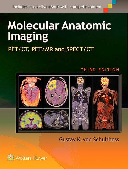 Portada del libro 9781451192667 Molecular Anatomic Imaging. Pet/ct, Pet/mr and Spect Ct