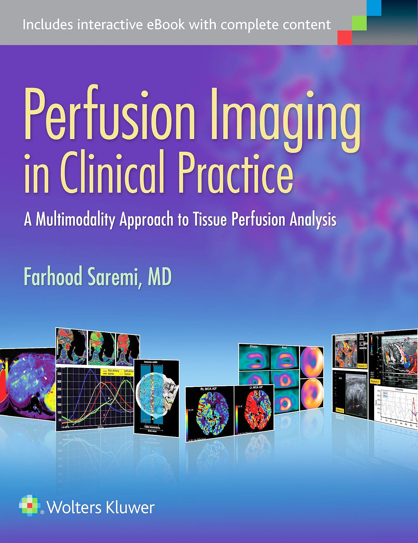 Portada del libro 9781451193169 Perfusion Imaging in Clinical Practice. a Multimodality Approach to Tissue Perfusion Analysis