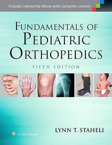 Portada del libro 9781451193930 Fundamentals of Pediatric Orthopedics
