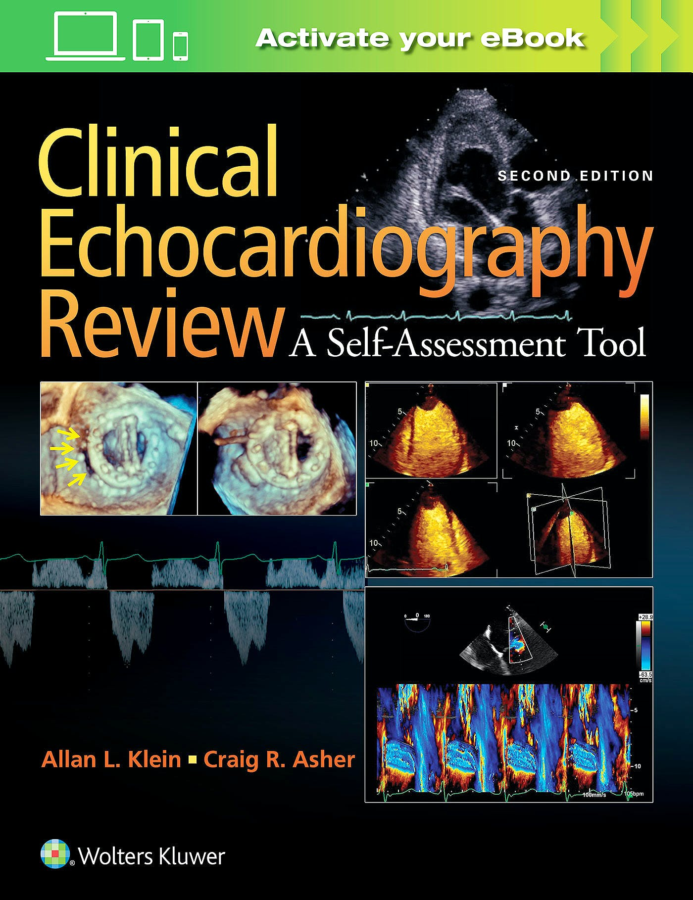Portada del libro 9781451195378 Clinical Echocardiography Review. a Self-Assessment Tool