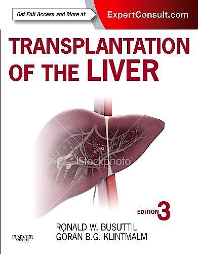 Portada del libro 9781455702688 Transplantation of the Liver (Online and Print)