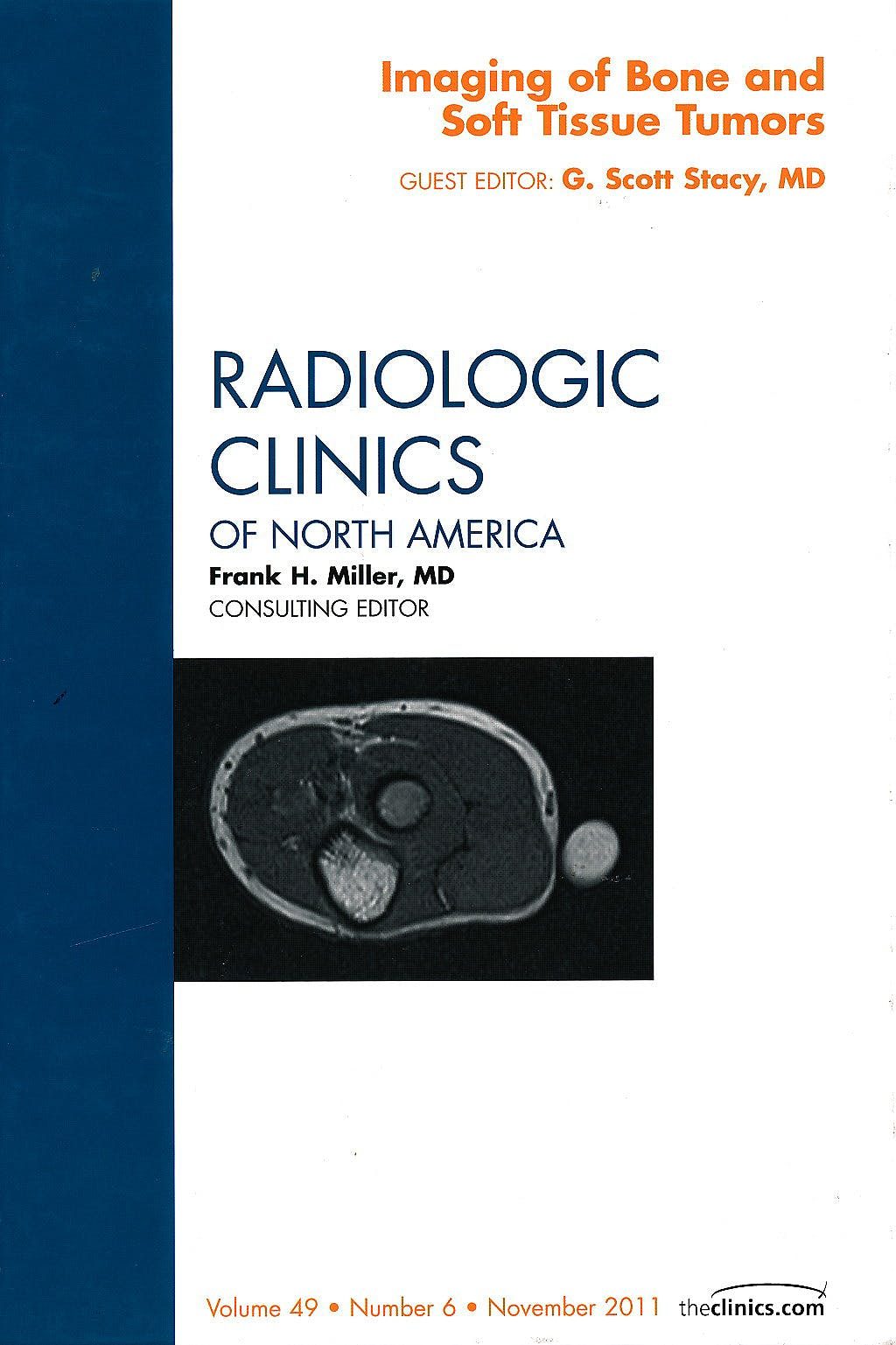 Portada del libro 9781455711529 Imaging of Bone and Soft Tissue Tumors (An Issue of Radiologic Clinics of North America)