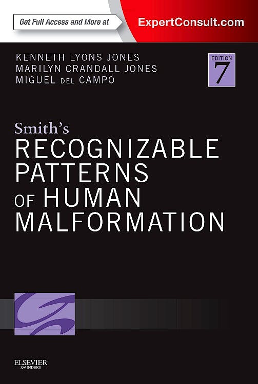 Portada del libro 9781455738113 Smith's Recognizable Patterns of Human Malformation (Print + Online)