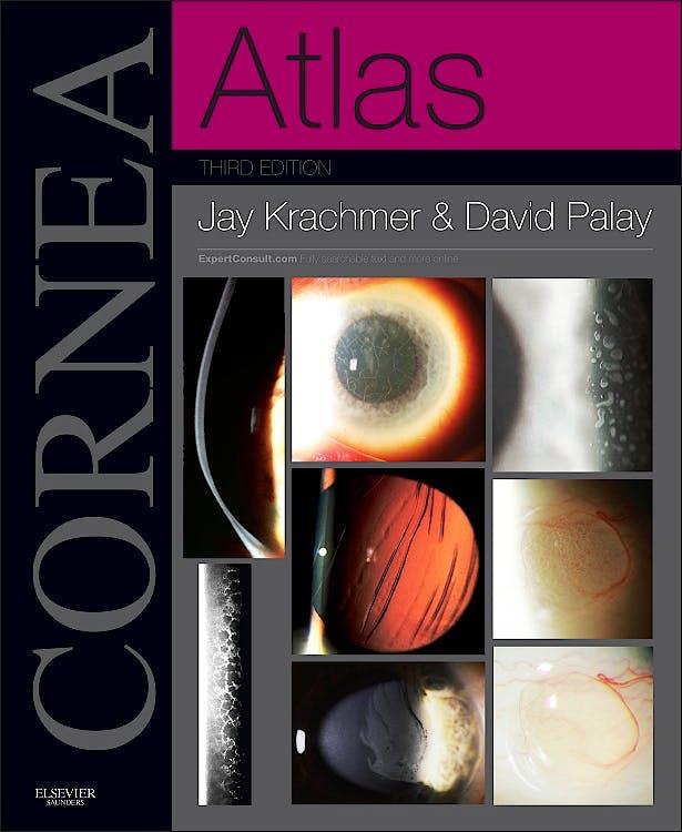 Portada del libro 9781455740604 Cornea. Atlas (Print + Online)