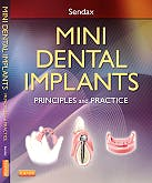 Portada del libro 9781455743865 Mini Dental Implants. Principles and Practice