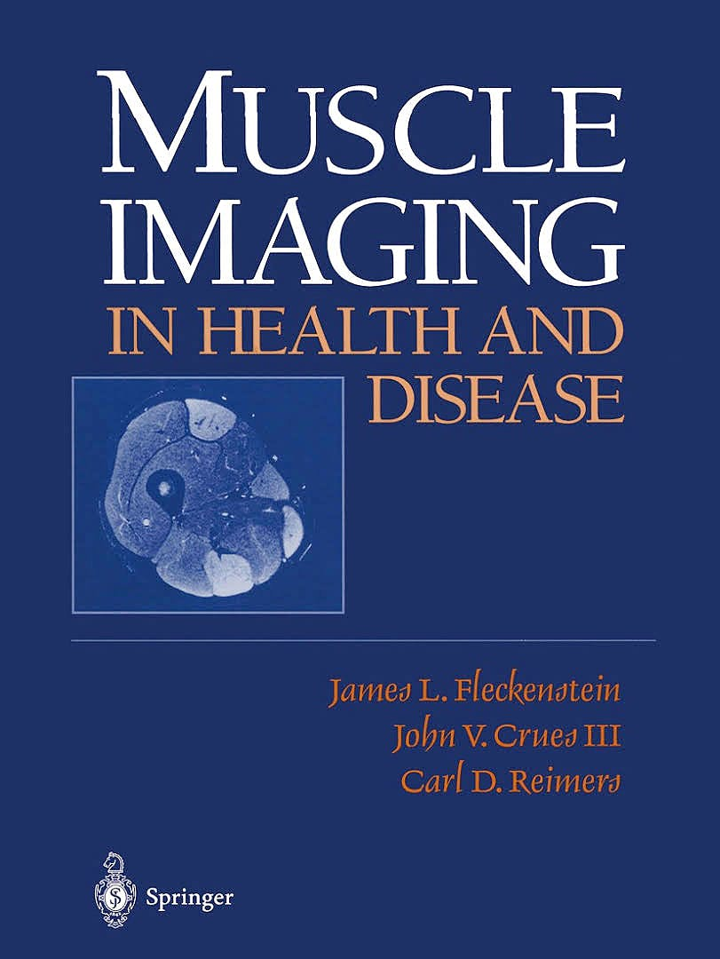 Portada del libro 9781461274988 Muscle Imaging in Health and Disease