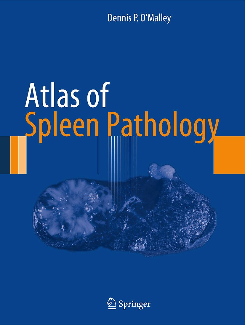 Portada del libro 9781461446712 Atlas of Spleen Pathology (Atlas of Anatomic Pathology)
