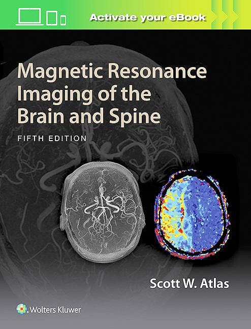 Portada del libro 9781469873206 Magnetic Resonance Imaging of the Brain and Spine