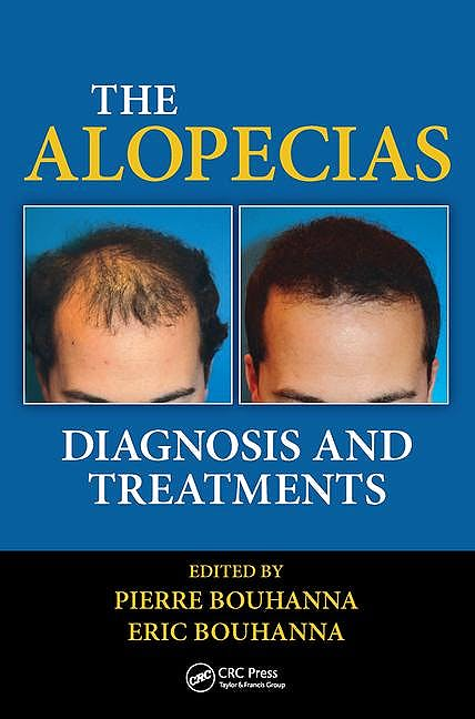 Portada del libro 9781482212754 The Alopecias. Diagnosis and Treatments