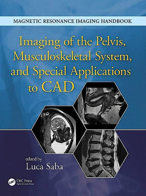 Portada del libro 9781482216219 Magnetic Resonance Imaging Handbook. Imaging of the Pelvis, Musculoskeletal System, and Special Applications to Cad