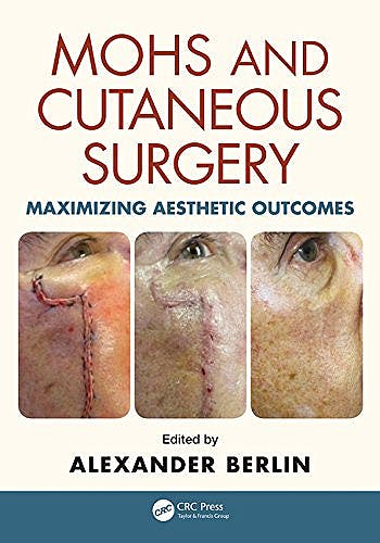 Portada del libro 9781482221367 Mohs and Cutaneous Surgery. Maximizing Aesthetic Outcomes