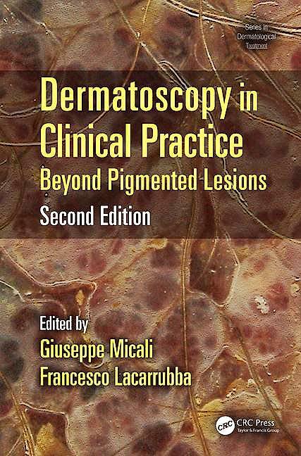 Portada del libro 9781482225952 Dermatoscopy in Clinical Practice. Beyond Pigmented Lesions