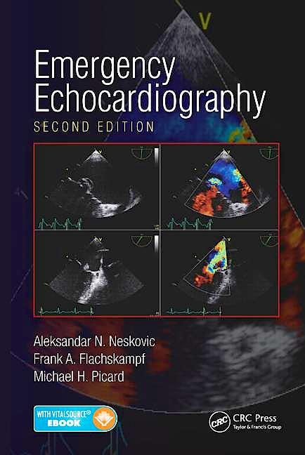 Portada del libro 9781482243857 Emergency Echocardiography (Book + Ebook)