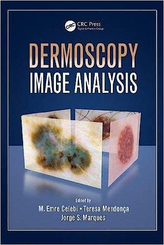 Portada del libro 9781482253269 Dermoscopy Image Analysis