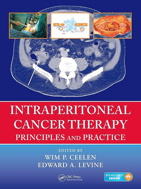 Portada del libro 9781482261189 Intraperitoneal Cancer Therapy. Principles and Practice