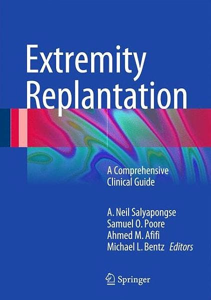 Portada del libro 9781489975157 Extremity Replantation. A Comprehensive Clinical Guide