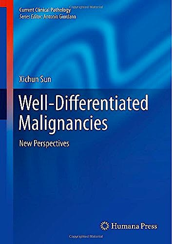 Portada del libro 9781493916917 Well-Differentiated Malignancies. New Perspectives