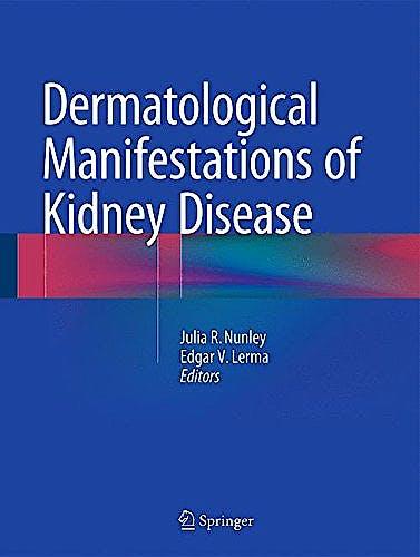 Portada del libro 9781493923946 Dermatological Manifestations of Kidney Disease
