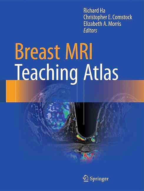 Portada del libro 9781493964079 Breast MRI Teaching Atlas
