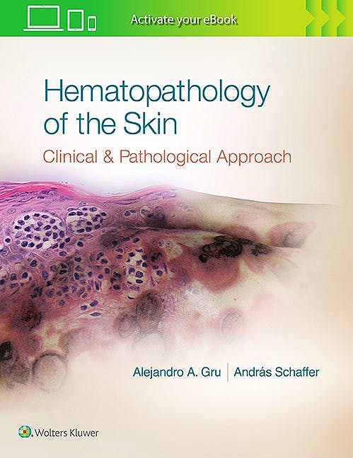 Portada del libro 9781496300584 Hematopathology of the Skin. A Clinical and Pathologic Approach