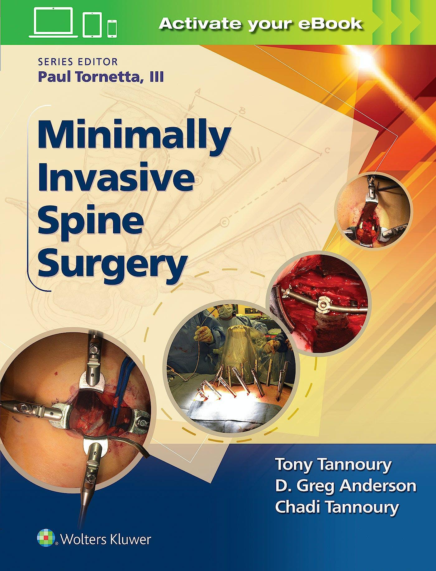Portada del libro 9781496301321 Minimally Invasive Spine Surgery