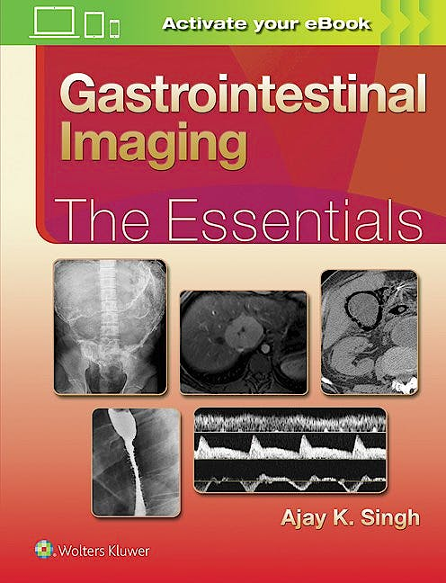 Portada del libro 9781496307194 Gastrointestinal Imaging: The Essentials