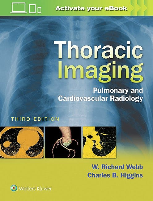 Portada del libro 9781496321046 Thoracic Imaging. Pulmonary and Cardiovascular Radiology