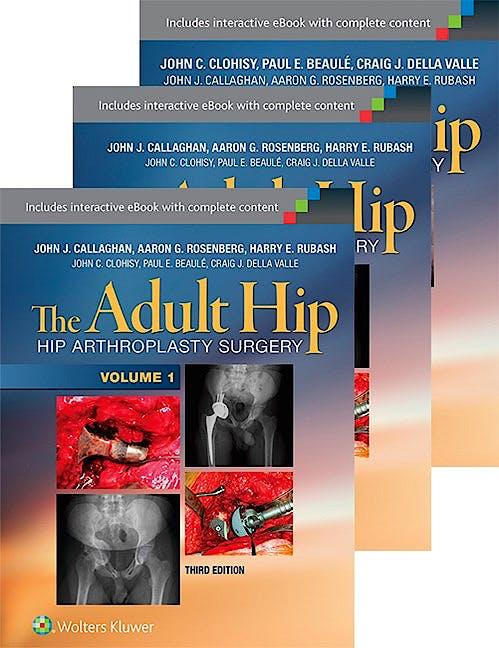 Portada del libro 9781496321961 The Adult Hip. Arthroplasty and Its Alternatives + Hip Preservation Surgery, 3 Vols.