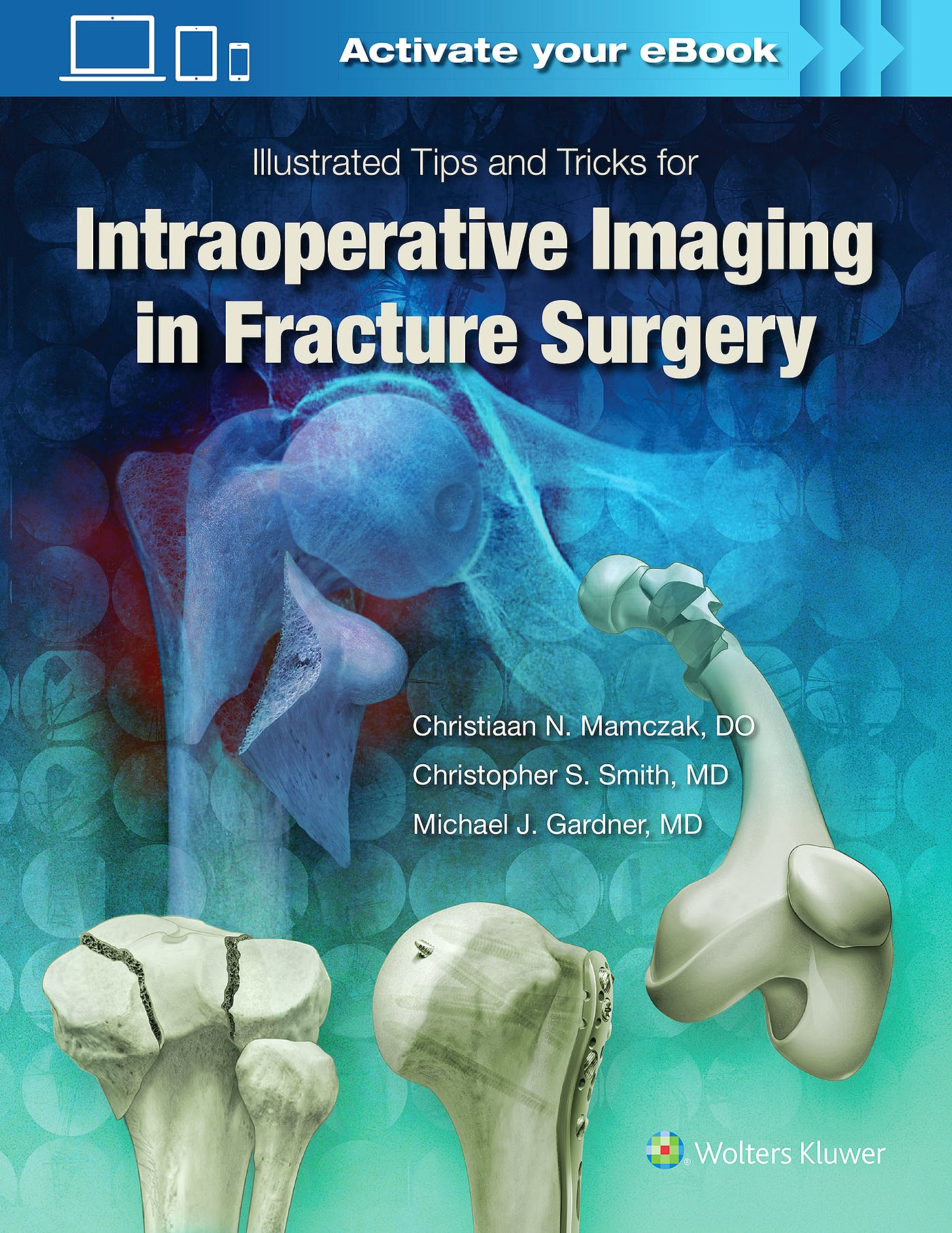Portada del libro 9781496328960 Illustrated Tips and Tricks for Intraoperative Imaging in Fracture Surgery