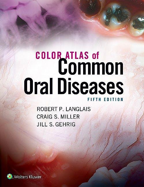 Portada del libro 9781496332080 Color Atlas of Common Oral Diseases