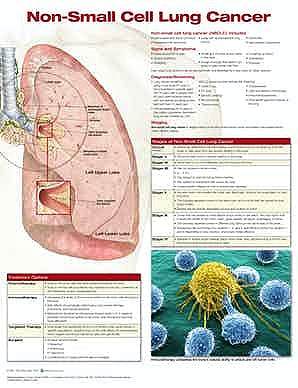 Non-Small Cell Lung Cancer (Anatomical Chart Company)