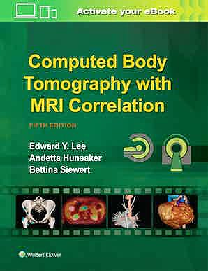 Portada del libro 9781496370495 Computed Body Tomography with MRI Correlation