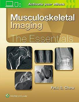 Portada del libro 9781496383839 Musculoskeletal Imaging. The Essentials