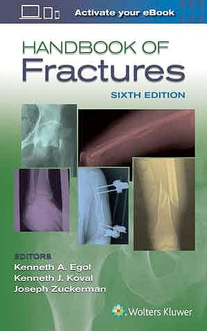 Portada del libro 9781496384850 Handbook of Fractures