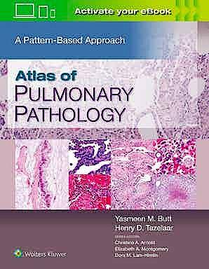Portada del libro 9781496397553 Atlas of Pulmonary Pathology. A Pattern Based Approach