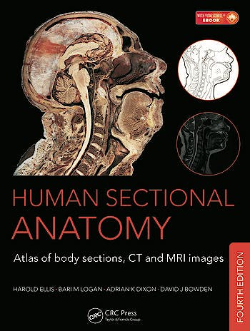 Portada del libro 9781498703604 Human Sectional Anatomy: Atlas of Body Sections, CT and MRI Images