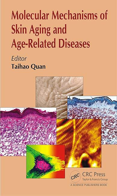 Portada del libro 9781498704649 Molecular Mechanisms of Skin Aging and Age-Related Diseases