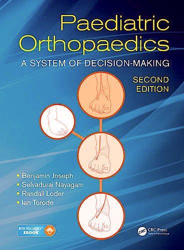 Portada del libro 9781498708401 Paediatric Orthopaedics. A System of Decision-Making