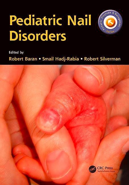 Portada del libro 9781498720458 Pediatric Nail Disorders (Softcover)