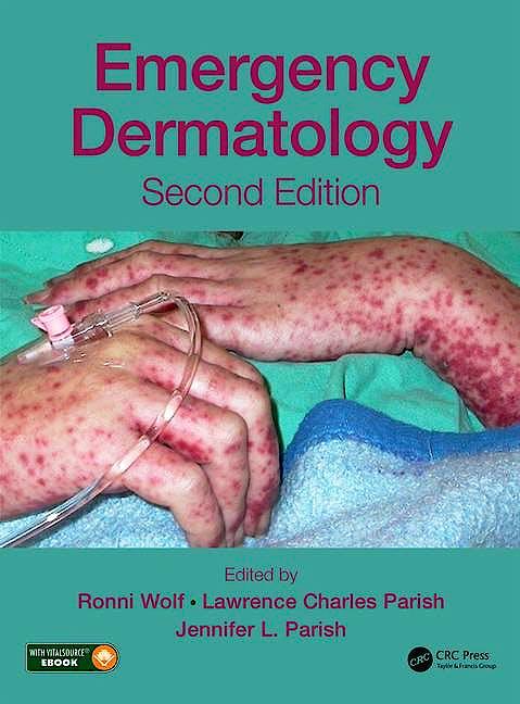 Portada del libro 9781498729314 Emergency Dermatology (Book + Ebook)