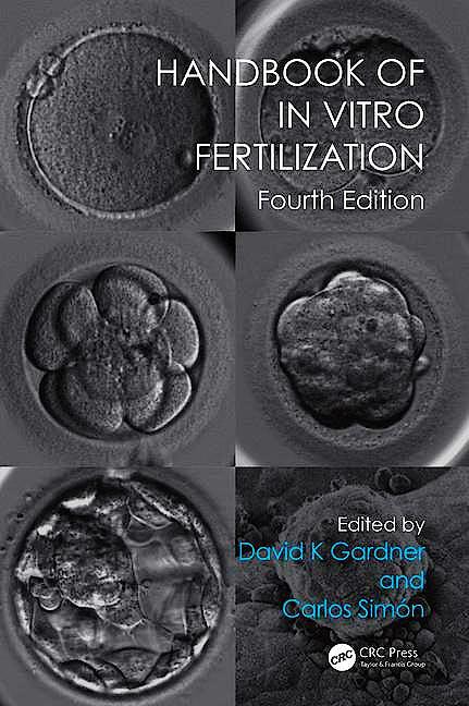 Portada del libro 9781498729390 Handbook of in Vitro Fertilization