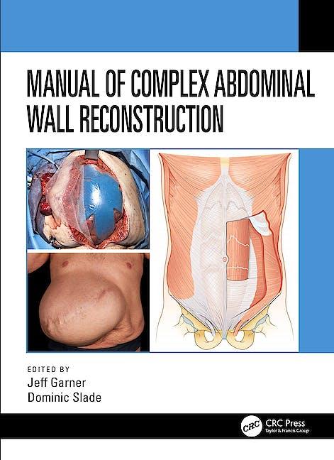 Portada del libro 9781498739467 Manual of Complex Abdominal Wall Reconstruction