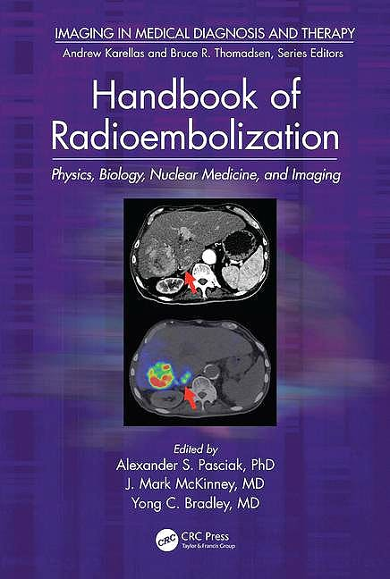 Portada del libro 9781498742016 Handbook of Radioembolization. Physics, Biology, Nuclear Medicine, and Imaging