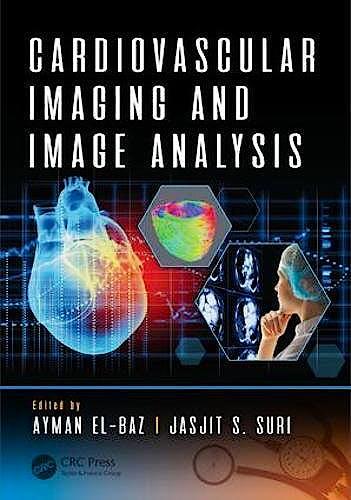 Portada del libro 9781498797580 Cardiovascular Imaging and Image Analysis