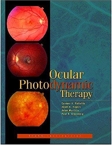 Portada del libro 9781556424908 Ocular Photodynamic Therapy