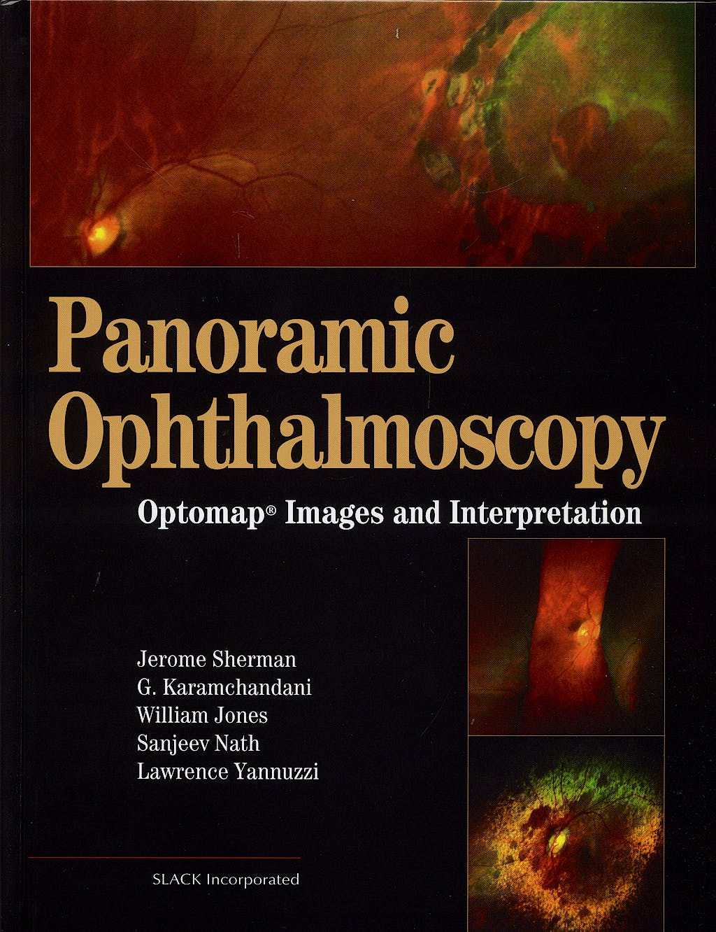 Portada del libro 9781556427800 Panoramic Ophthalmoscopy. Optomap Images And Interpretation